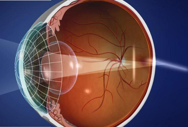 Esempio di occhio astigmatico
