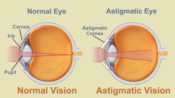 Occhio normale e occhio astigmatico