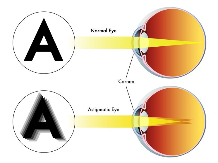 Vista sfocata nell'astigmatismo