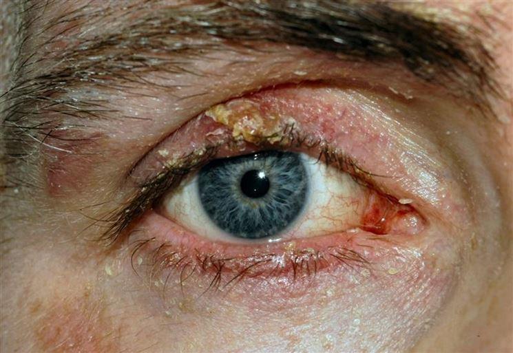 Palpebra superiore blefarite
