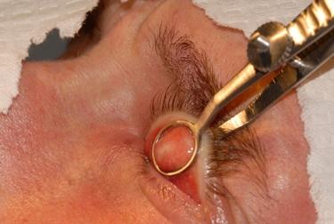 Rimozione chirurgica del calazio