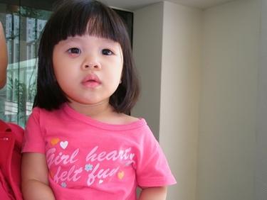 Bambina con calazio