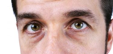 camomilla occhiaie