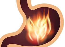 Gastrite acuta