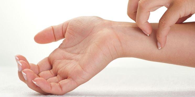 Prurito dermatite
