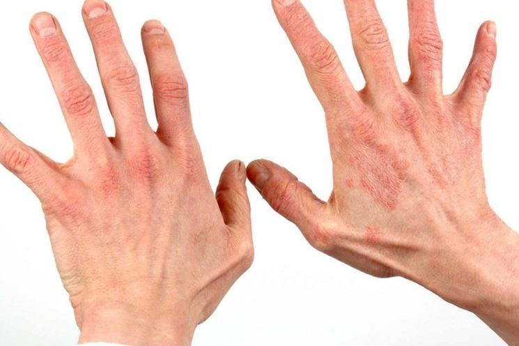 Desquamazione pelle