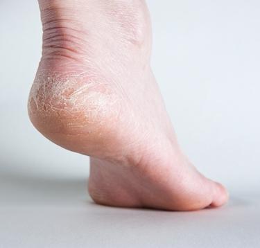 Fungo di pelle e unghie di trattamento di mani