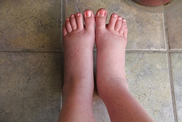 piedi gonfi2