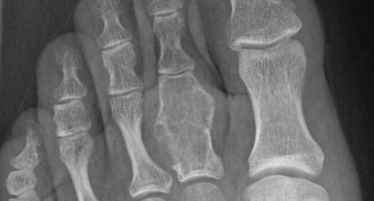 ossa piede