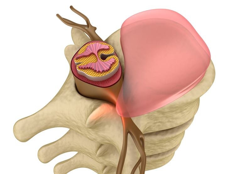 Ernia discale lombare