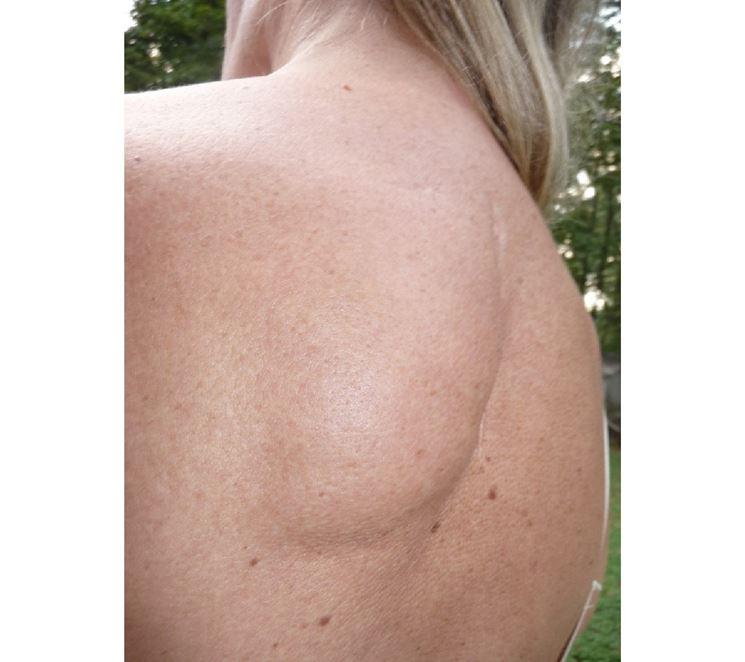 Lipoma schiena