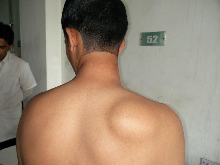 Mielolipoma schiena