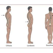 Confronto postura normale lordotica