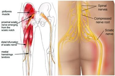 Nervi lombari, sacrali e sciatico