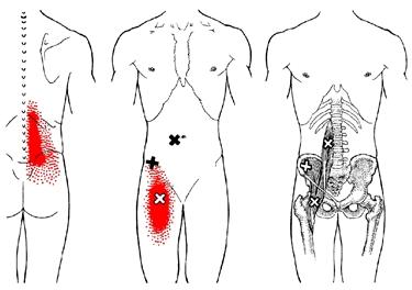 Terapia fisica per la sciatica