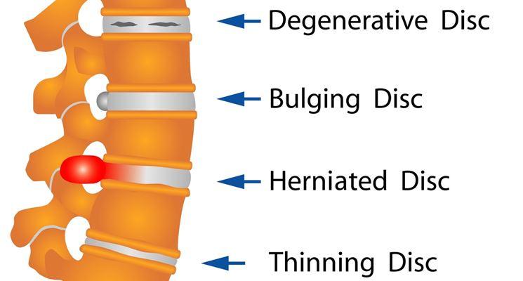 Malformazione da spina bifida