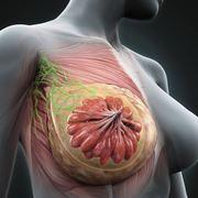 Mastite infiammazione ghiandola mammaria