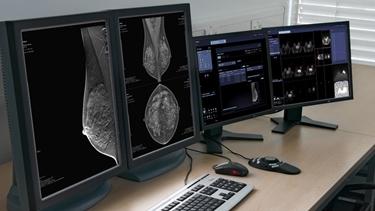 Immagine di un seno sano
