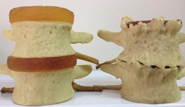 Deterioramento delle cartilaggini cervicali