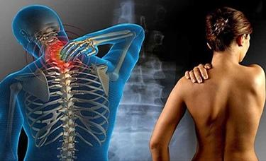 Rapporto grafico muscolo-scheletrico della cervicalgia<p />