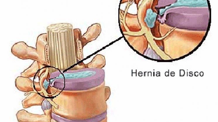 Ernia cervicale molle