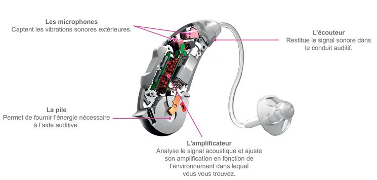 Componenti protesi acustica