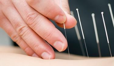 La tecnica dell'agopuntura