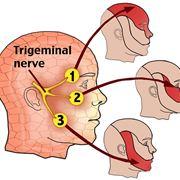 Anatomia del nervo trigemino