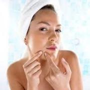 acne semplice