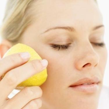 limone acne