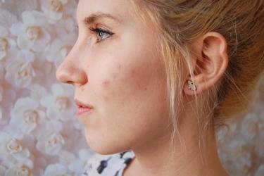 ragazza con acne