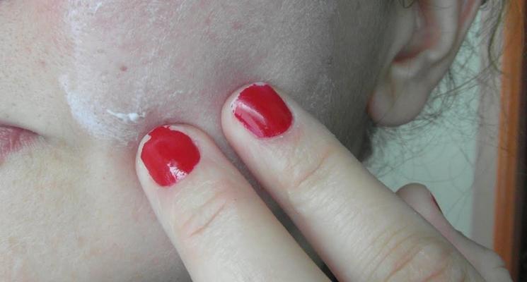 crema cicatrici