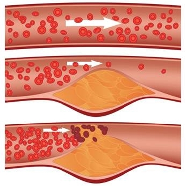 Colesterolo alto<p />