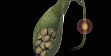 Calcolo che ostruisce dotto biliare