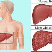 Fegato sano e con Cirrosi