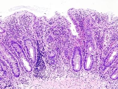 Intestino infiammato al microscopio
