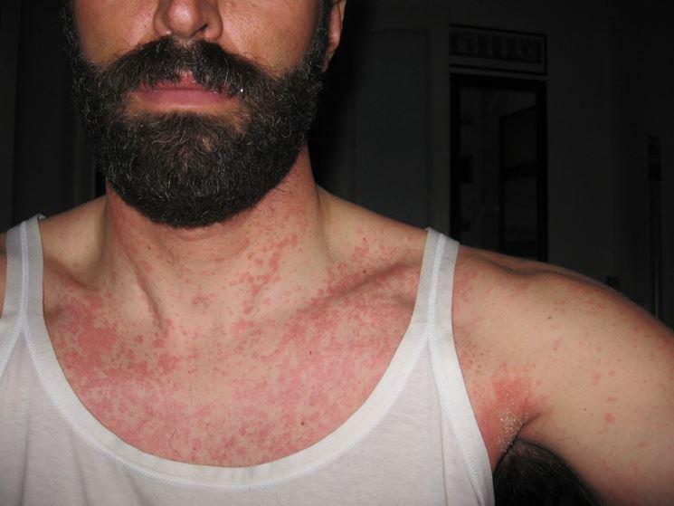 Caso di allergia da cibo