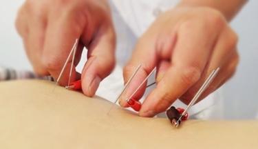 Elettro-agopuntura di Voll