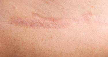 cicatrice acneica