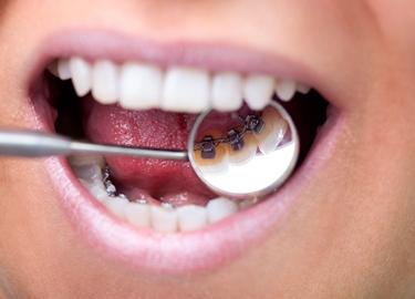 apparecchio per denti