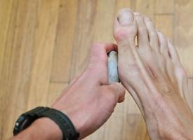 Calli piedi