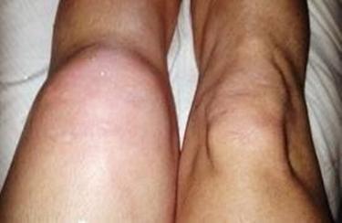 Distorsione ginocchio<p />