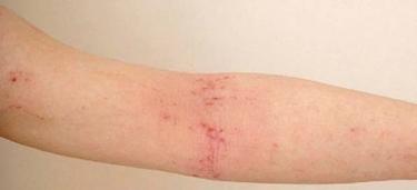 ferite braccio