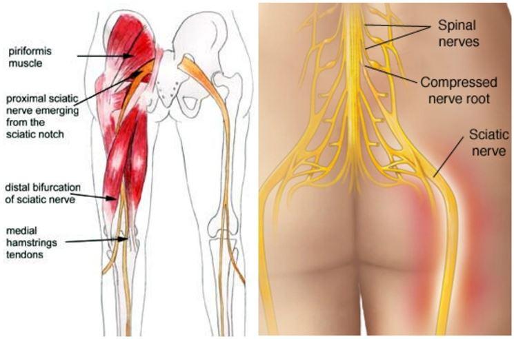 Ginnastica a ernia intervertebrale