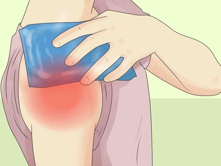 Strappi muscolari intervento