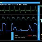 Parametri cardiaci su ecg
