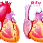Aneurisma aortico e protesi