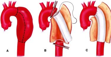 La chirurgia per l'aneurisma dell'aorta