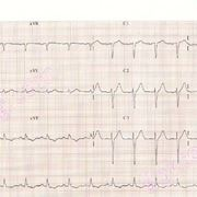 Elettrocardiogramma ventricolare