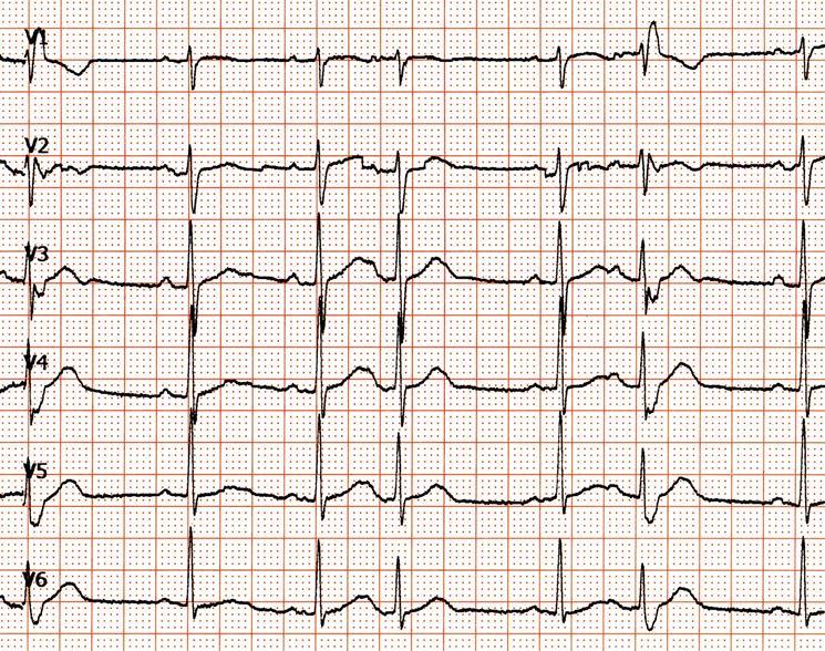 Tracciato extrasistolia ventricolare